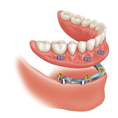 proteze dentare
