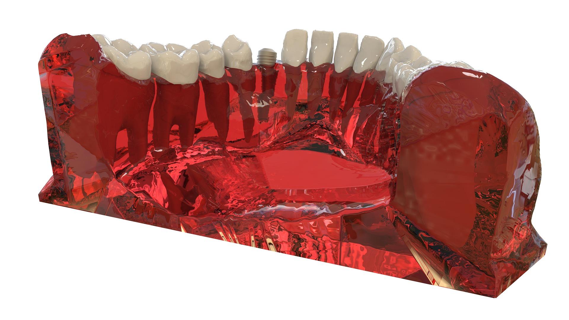 implantarea dentara