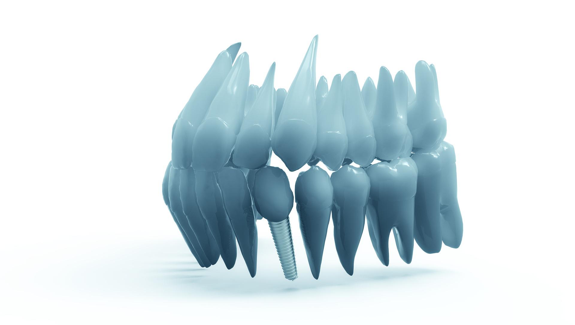 totul despre implanturi dentare