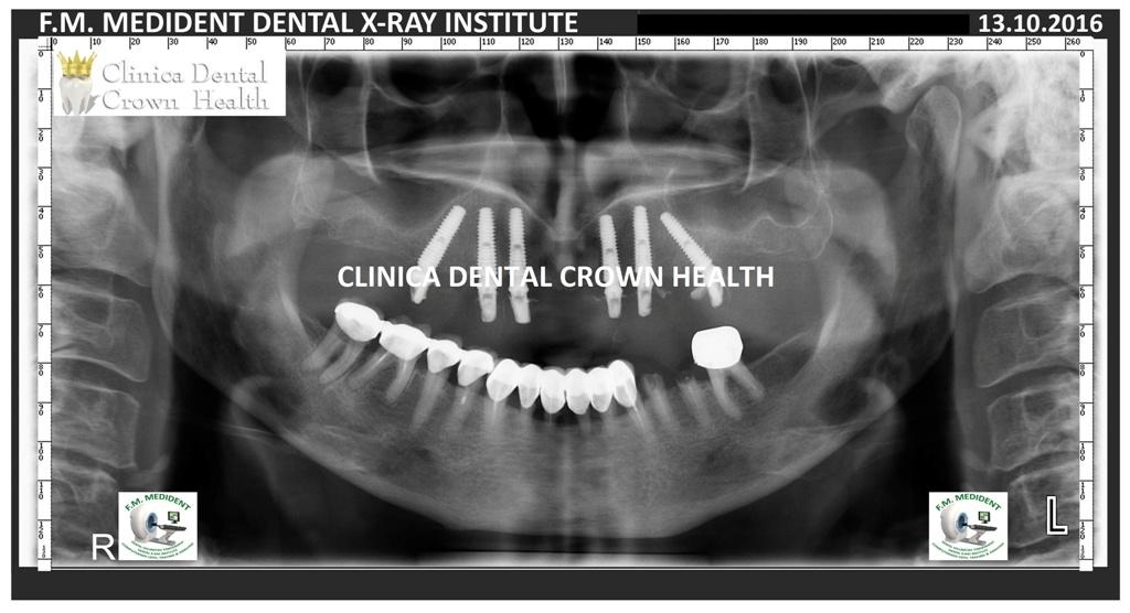 preturi la implanturi dentare