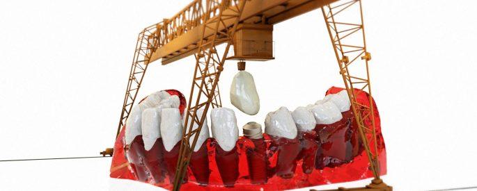 implant dentar in Bucuresti, cabinet stomatologic din Colentina, elveto-dent.ro, aditia de os, aditia osoasa, extractie masea de minte sector 2, urgente stomatologice non stop Obor, aparat dentar ieftin, proteze dentare sector 2, clinica stomatologica sector 2, clinica dentara Elveto Dent, detartraj sector 2
