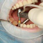 implantul-dentar